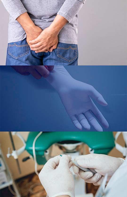 Quais doenças o médico proctologista pode tratar?