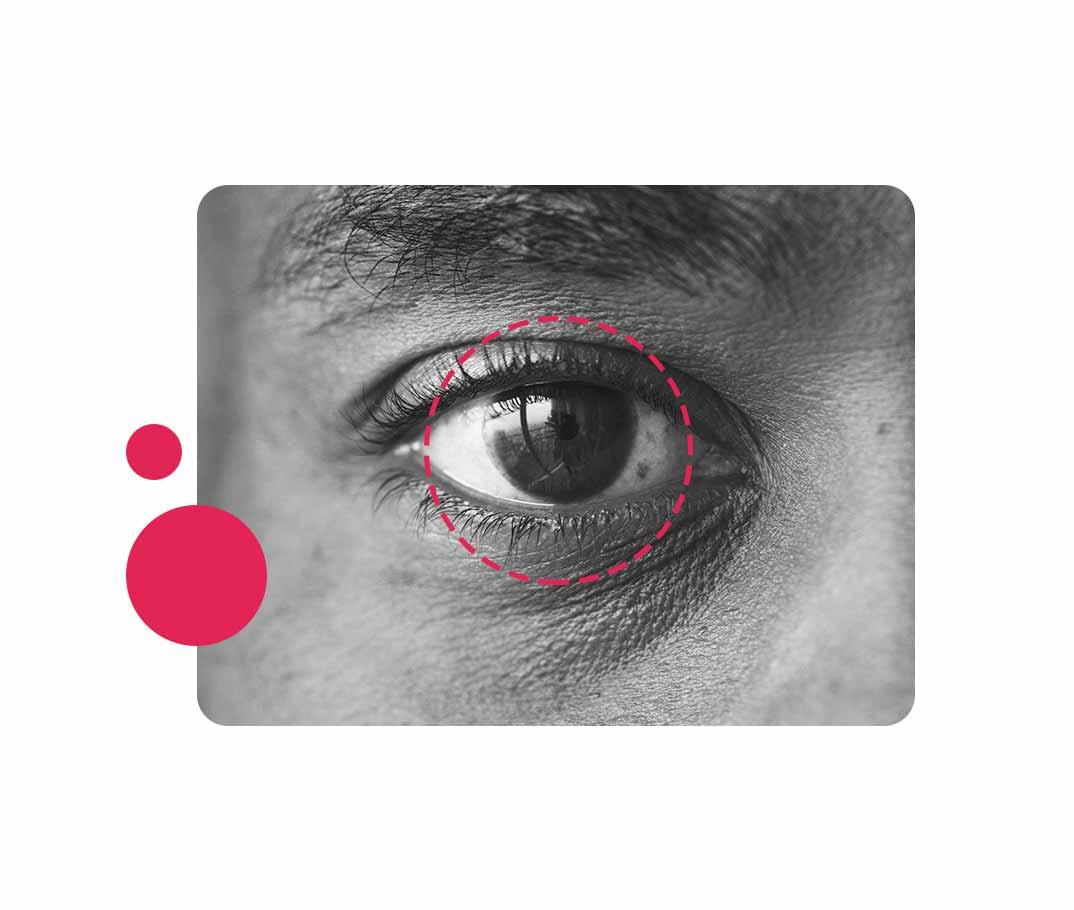 Como o mapeamento de retina é realizado?
